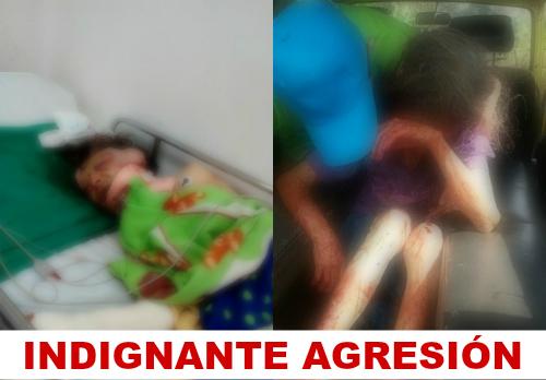 Indignante agresión a una abuela en el municipio de La Cumbre