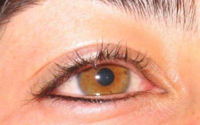 Alerta en el Valle por casos de ceguera por procedimientos estéticos