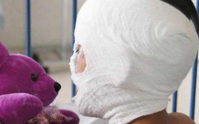 21 personas quemadas por pólvora en fin de año en el Valle